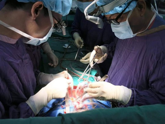 Bác sĩ Việt Nam lập kỷ lục về ghép 23 tạng thành công ảnh 1