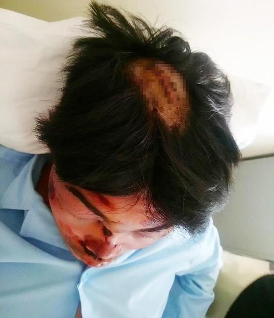 Một học sinh lớp 11 tố bị bạn cùng trường dùng dao chém toạc đầu ảnh 1