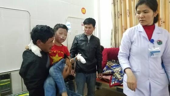 Bình gas mini phát nổ, 7 học sinh bị bỏng phải nhập viện cấp cứu ảnh 2