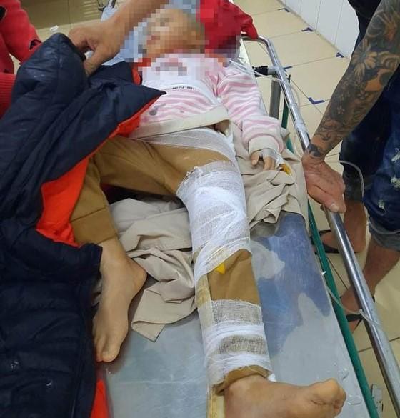 Hà Tĩnh: Sạt lở đất đồi làm sập tường nhà dân, 1 cháu bé bị gãy chân ảnh 1