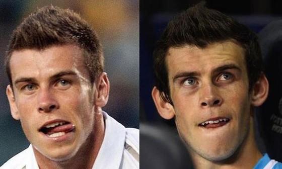 """Hồ sơ Gareth Bale: Hóa rồng nhờ phẫu thuật """"đôi tai khỉ"""" ảnh 3"""