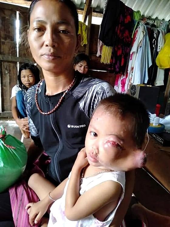 Hộ nghèo dân tộc Jrai có 3 con bệnh nặng ảnh 1