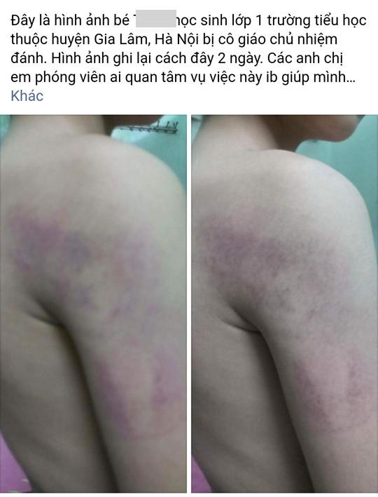 Cô giáo tại Hà Nội đánh học sinh lớp 1 bầm tím cánh tay ảnh 2