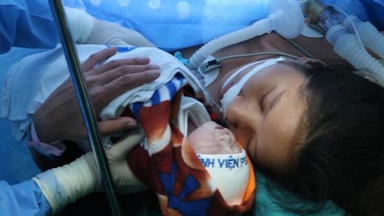 Mổ bắt con thành công cho bệnh nhân bị khó thở do hẹp khít khí quản ảnh 2