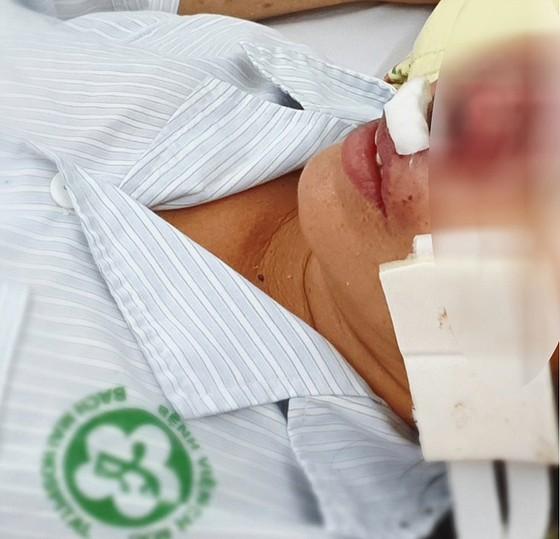 Bệnh Whitmore - nguy hiểm, dễ lây nhiễm khi tiếp xúc ảnh 2
