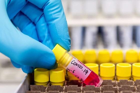 Phát hiện chủng virus SARS-CoV-2 ở Malaysia có khả năng lây nhiễm gấp 10 lần - Ảnh 1.