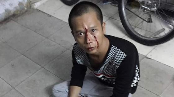 Cảnh sát giao thông bắt tên cướp giật điện thoại ảnh 1