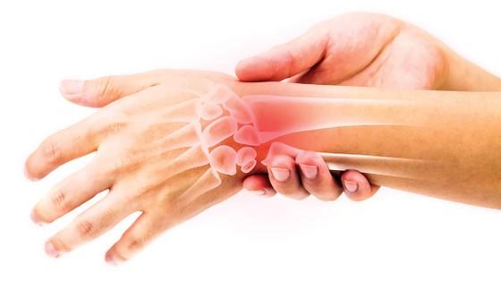 Đừng chủ quan hội chứng ống cổ tay ảnh 2