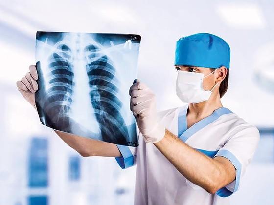 Điều trị hiệu quả ung thư phổi  ảnh 2