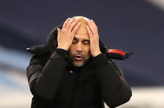 Pep Guardiola đau đầu vì mất quân