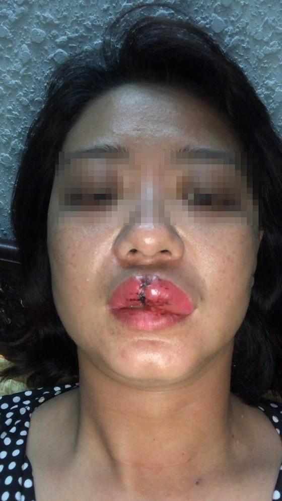 Khởi tố, tạm giam chủ công trình trái phép đánh cán bộ phường gãy răng ảnh 1