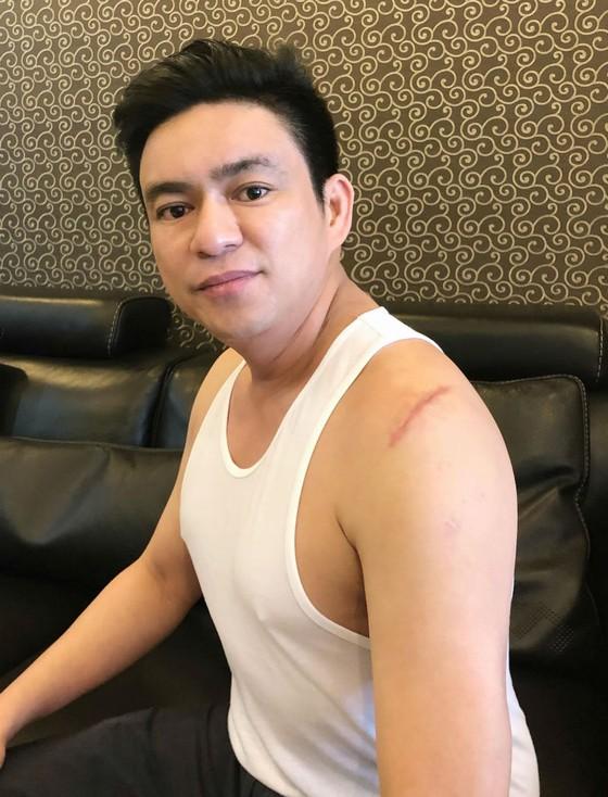 Vụ bác sĩ Chiêm Quốc Thái bị chém ở phố đi bộ: Bắt giữ nghi can chủ mưu ảnh 2