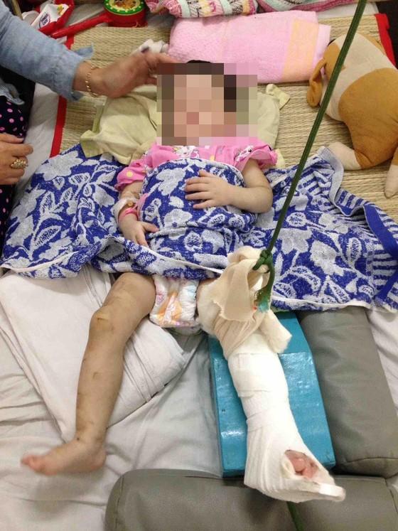 Bé gái 2 tuổi bị mẹ nuôi đánh gãy chân ảnh 1