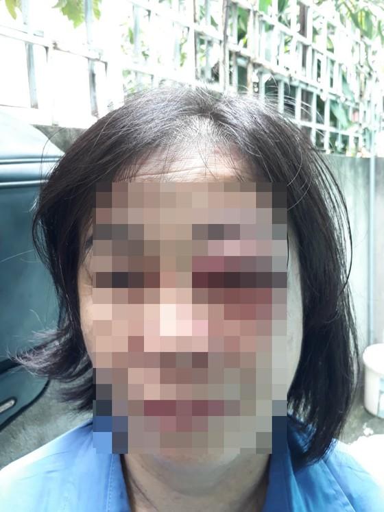 Người đàn ông đánh nữ tiếp viên xe buýt sưng mắt vì bị nhắc nhở mở nhỏ nhạc ảnh 1