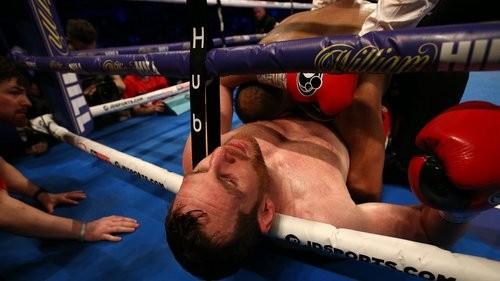 Quyền Anh: Cắn đối thủ đồng hương, võ sĩ Anh sẽ bị cấm thi đấu ảnh 2