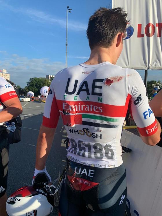 Tour de Pologne: Đua nước rút ở đích đến, Fabio Jakobsen gặp tai nạn thảm khốc, phải mổ não ảnh 2