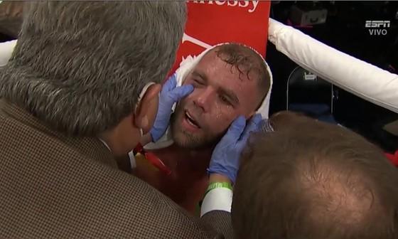 Canelo Alvarez: Đấm vỡ xương gò má Billy Joe Saunders, khiến đối thủ không thể ứng chiến sau hiệp 8 ảnh 5