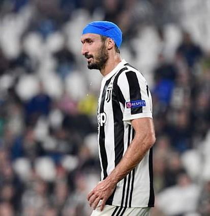 Chiellini băng kín đầu vẫn chơi đến hết trận. Ảnh: Getty Images.