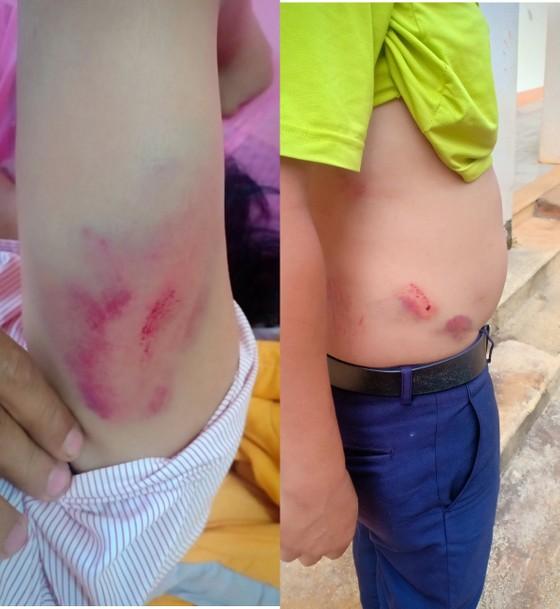 Đắk Nông: Làm rõ vụ việc Chánh Văn phòng đánh lái xe nhập viện ảnh 1
