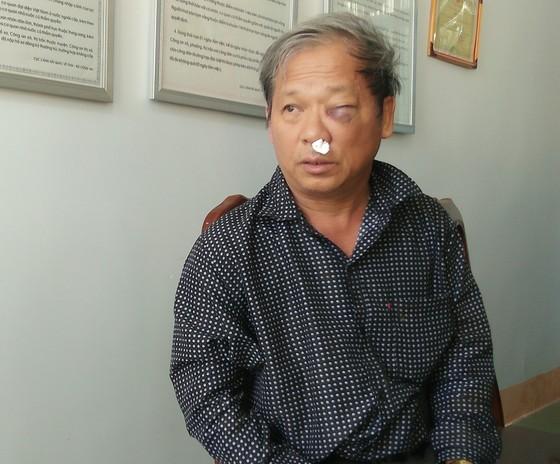 Phóng viên bị đánh dã man sau khi báo tin khai thác đất trái phép ảnh 1