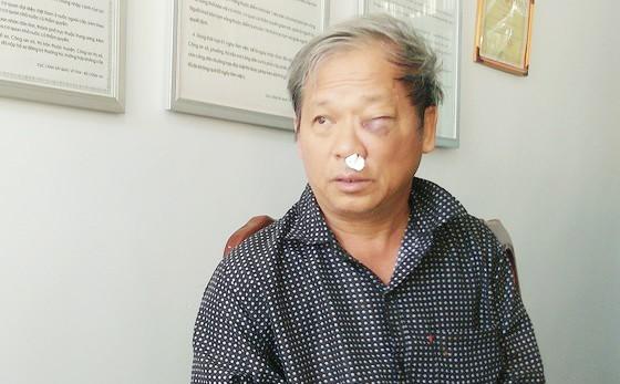 Chủ tịch UBND tỉnh Kon Tum chỉ đạo điều tra vụ phóng viên VTV bị hành hung dã man ảnh 2