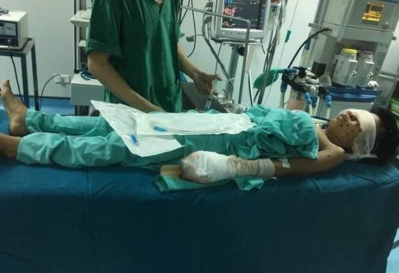 Một thiếu niên bị thương nặng sau tiếng nổ lớn ảnh 1
