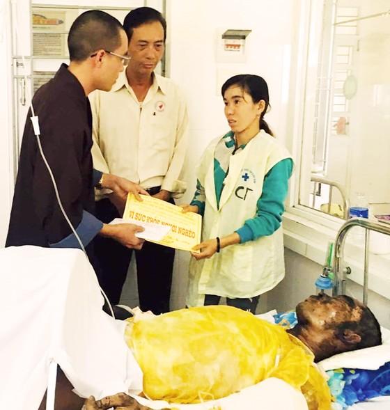 Giúp một bệnh nhân nghèo bị tai nạn, bỏng toàn thân ảnh 1