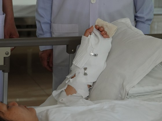 Dự tiệc tất niên, một phụ nữ bị chém đứt lìa cánh tay ảnh 2