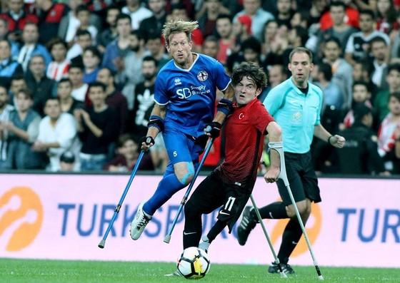 bóng đá, khuyết tật,  ảnh 3
