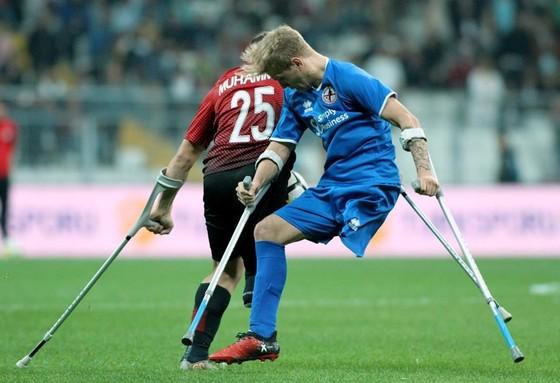 bóng đá, khuyết tật,  ảnh 4