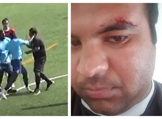 Trọng tài Satyam Toki bị cầu thủ Mundial đánh rách mắt ảnh 1
