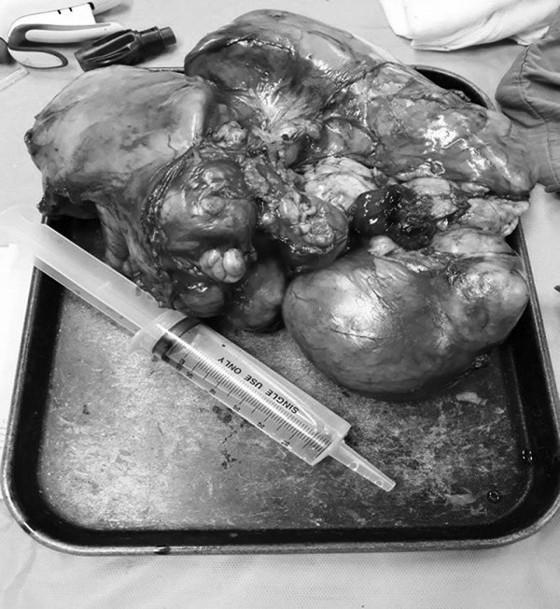 Phẫu thuật thành công khối u trung thất đến 4 kg ảnh 2