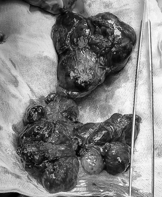 Phẫu thuật thành công bướu giáp thòng từ cổ xuống ngực ảnh 1
