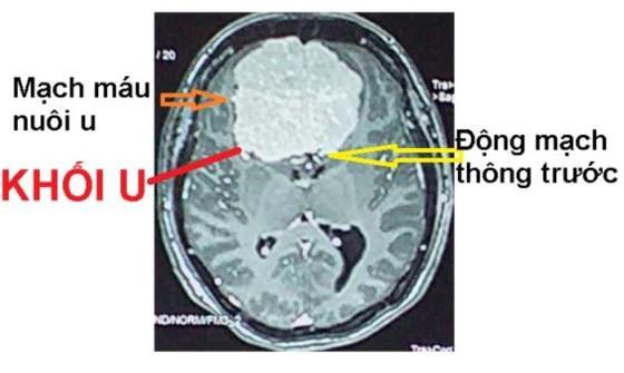 Cứu sống bệnh nhân bị u não to bằng quả trứng ảnh 1
