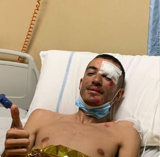 Tay đua xe đạp giải Giro d'Italia bị tai nạn vì… máy bay trực thăng ảnh 1