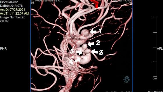 Điều trị thành công bệnh nhân có 5 túi phình mạch máu ảnh 1