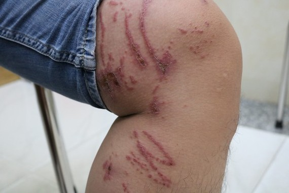 A man is attacked by rove beetle in the leg (Photo: SGGP)