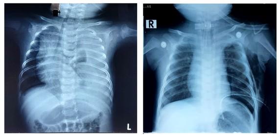 Phim chụp Xquang trước phẫu thuật của bệnh nhi phổi bên trái có nhiều dịch trắng xóa và phim chụp Xquang sau phẫu thuật