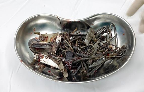 Dị vật kim loại được lấy ra từ ổ bụng của bệnh nhân
