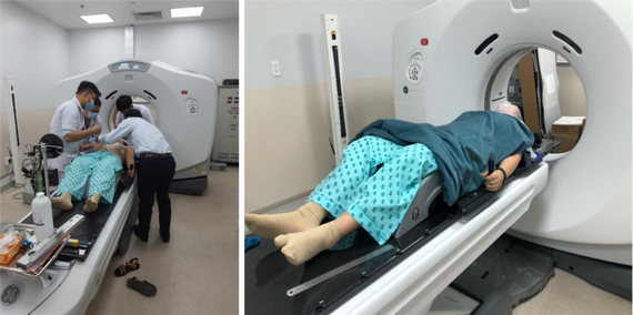 Bệnh nhân đầu tiên được thực hiện CT mô phỏng trước khi được xạ trị vùng đầu cổ