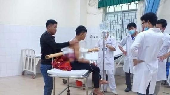 Nam thanh niên bị cây keo đâm xuyên ngực từ trước ra sau