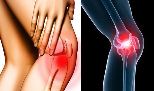 Chớ coi thường chấn thương khớp gối