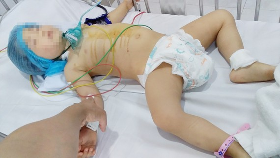 Cháu Trần Tú Uyên bị bệnh tim bẩm sinh mong được sự giúp đỡ để chữa bệnh