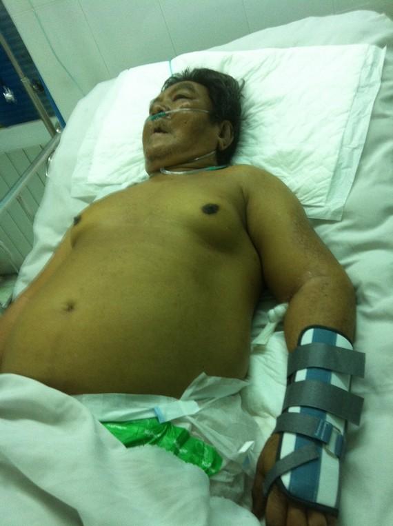 由於病情嚴重,文榮仍留在重症急救室接受治療。