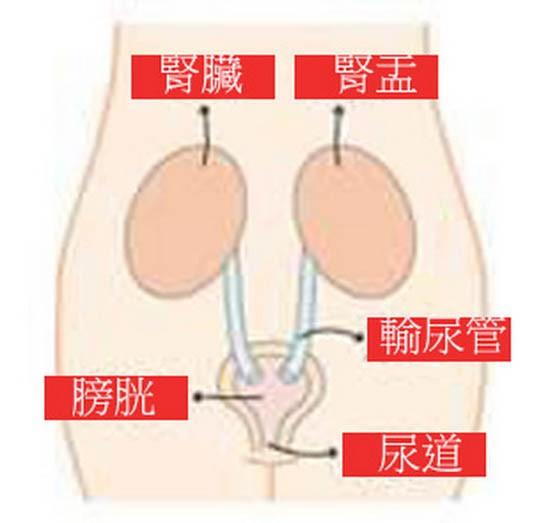 腎盂 腎炎 原因