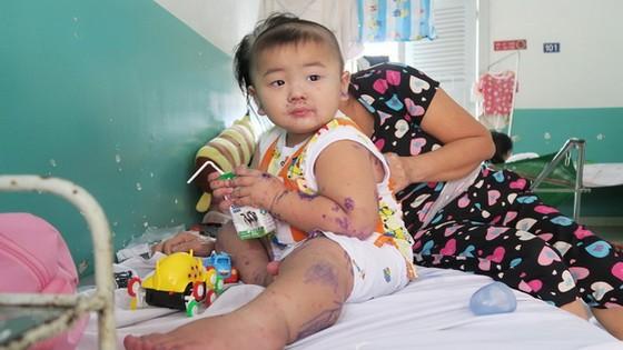 入住市第二兒童醫院接受治療中的一名病童。(圖源:丁姮)