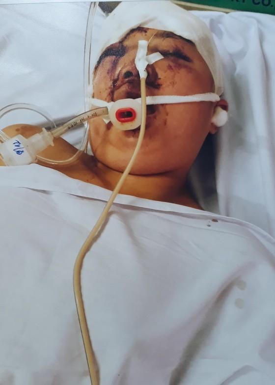 林碧鳳正在大水鑊醫院3樓外神經科加護病房跟進病情。