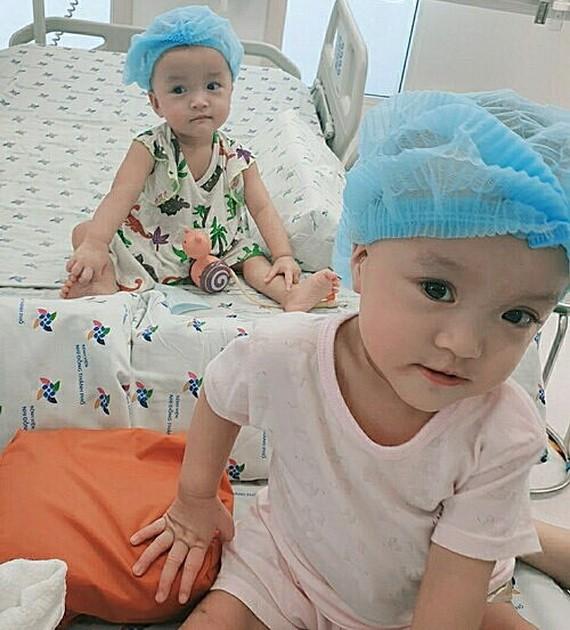連體女嬰竹兒-妙兒成功分離一個多月後健康良好。(圖源:院方提供)