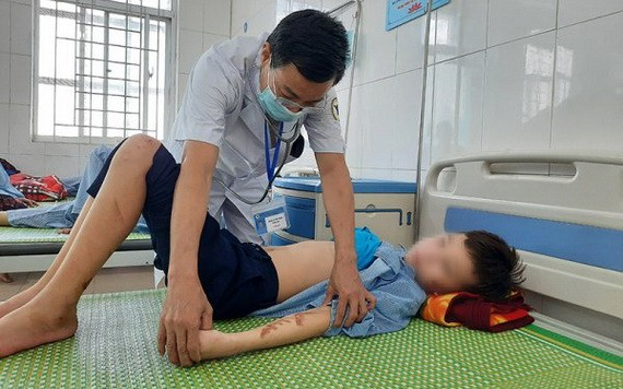 北寧省安豐縣醫療中心的一名醫生在為T.Q.D病童檢查傷勢。(圖源:銀英)