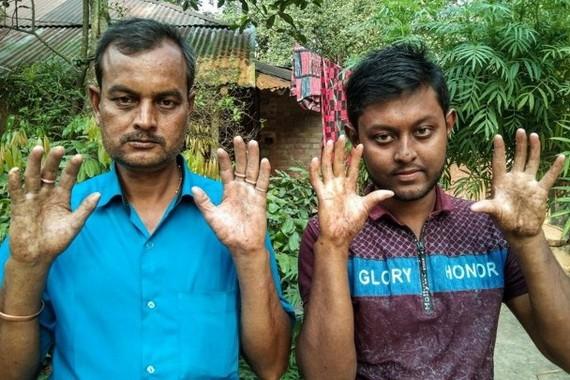 阿普(右)與父親都沒有指紋。(圖源:互聯網)